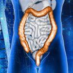 Salud intestinal: Cómo detectar el cáncer de colon y recto